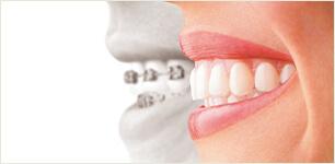 歯が動くときに痛みはありますか?