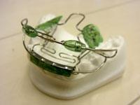 Bimler's CLUB : きれいな歯並びを目指す会通称『びむくら』のご案内